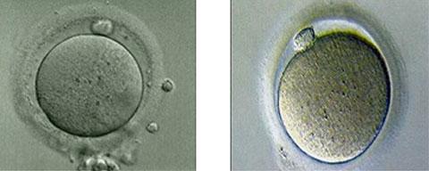 Как выходит неоплодотворенная яйцеклетка